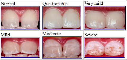 CDC dental fluorosis comparisonphotos