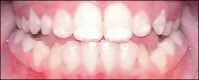 The plaintiff's teeth in the Nemphos v. Nestle suit (2013), an example of mild dental fluorosis. Photo - Nidel Law.